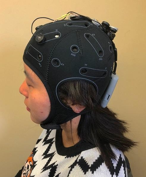 transcranial direct current stimulation device